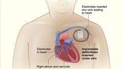 MRI לנבדק עם קוצב לב (אילוסטרציה)