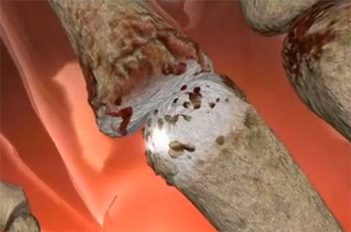 דלקת מפרקים שיגרונית
