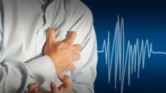 התקף לב (אילוסטרציה)