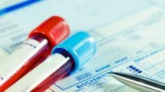מבחנות, בדיקת דם (צילום: אילוסטרציה)