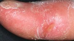 טרשת העור, Systemic Sclerosis (צילום: ויקיפדיה)