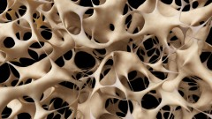 אוסטאופרוזיס (צילום: אילוסטרציה)