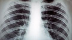 ריאות, תצלום רנטגן (צילום: אילוסטרציה)