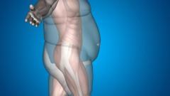 obesity (צילום: shutterstock)