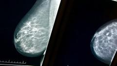 Mammogram (צילום: shutterstock)