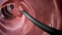 colonoscopy (צילום: shutterstock)
