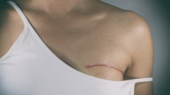 Breast reconstruction (אילוסטרציה: shutterstock)
