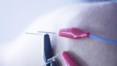 (Electroacupuncture (shutterstock