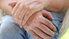(vitiligo (shutterstock