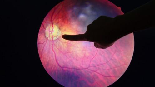 (Eye diabetic (shutterstock