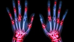 (Rheumatoid Arthritis (shutterstock