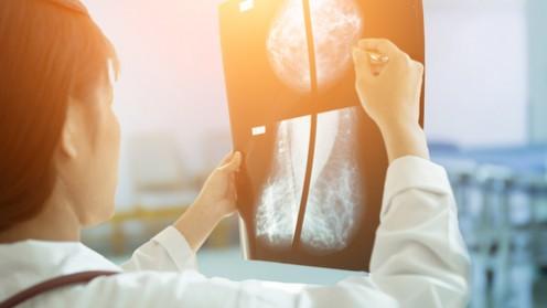 סרטן השד (אילוסטרציה)