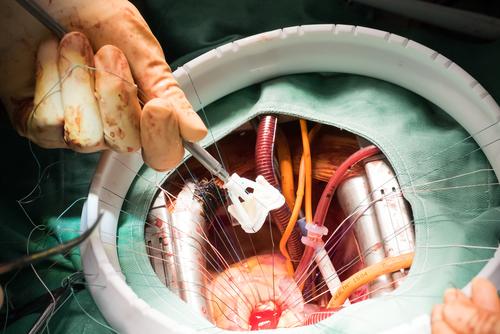החלפת מסתם ניתוחית (אילוסטרציה)