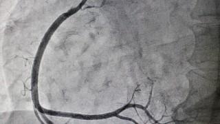 צילום רנטגן אחרי צנתור